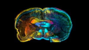 brain of an adult mouse